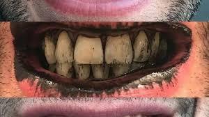 Du charbon végétal  pour se blanchir les dents ?? le point du dentiste