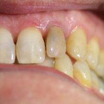 Eclaircissement d'une dent unitaire